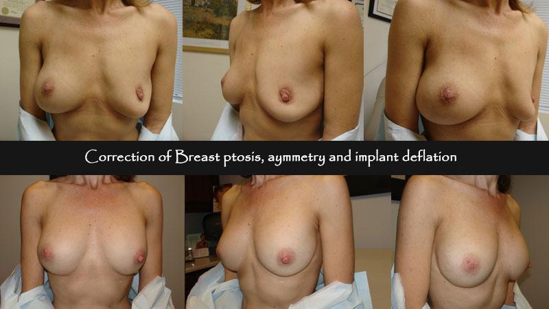 breast04