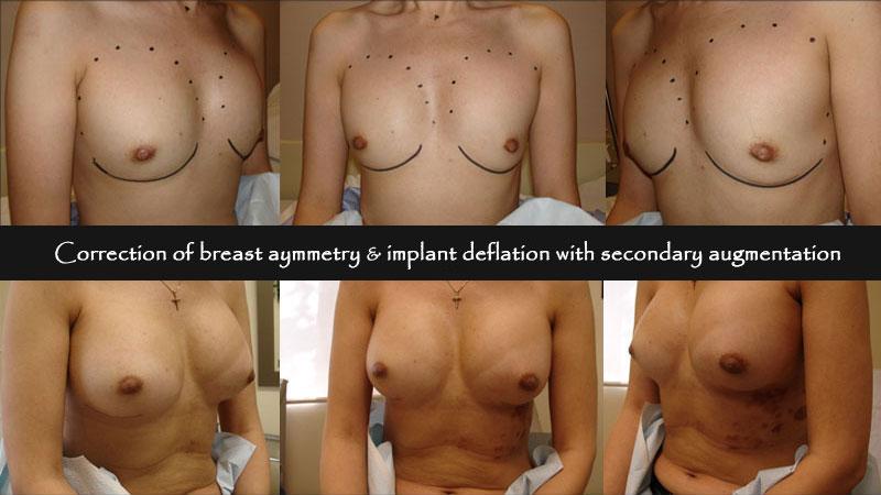 breast05