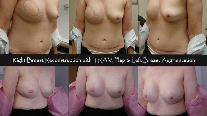 breast09