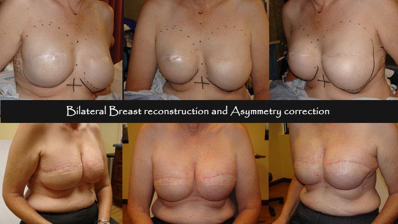 breast10