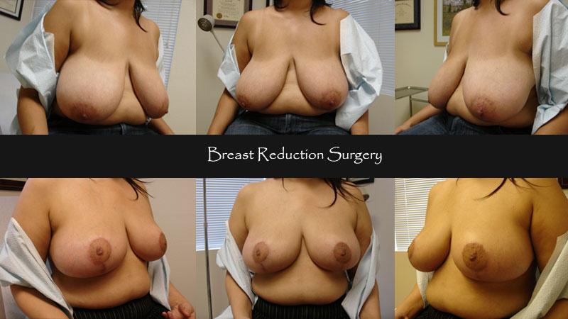breast11