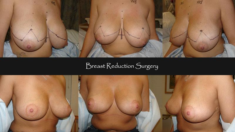 breast12