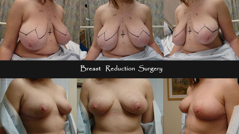 breast14