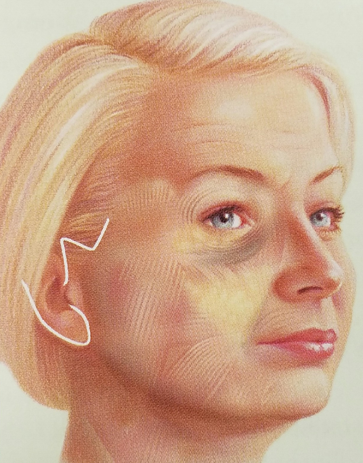 Face Procedures Cosmetic Reconstructive Surgery